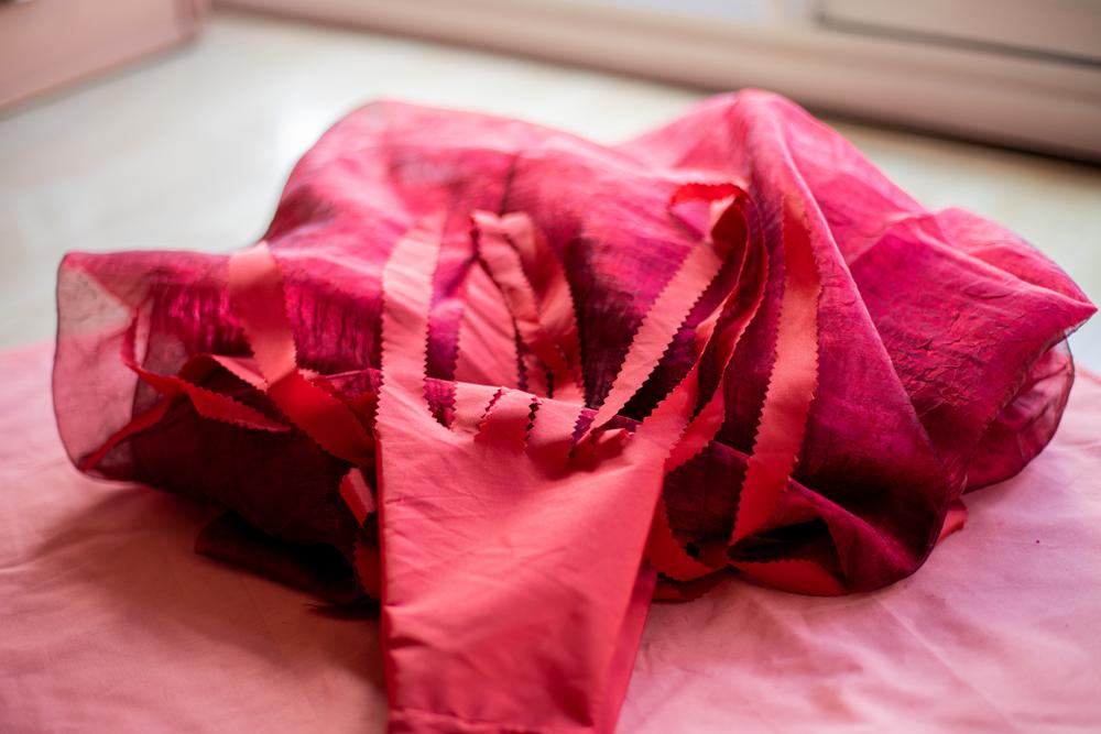 syndrome des ovaires polykistique